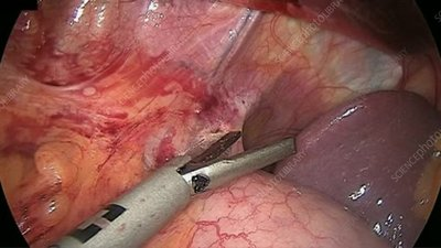 Gastric bypass surgery, endoscope view
