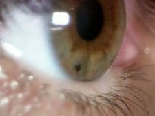 Human eye, iris and pupil