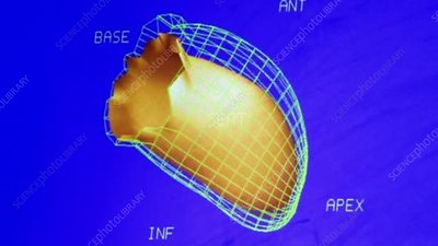 MUGA scan of beating heart