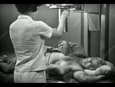 Mammography technique, 1960s