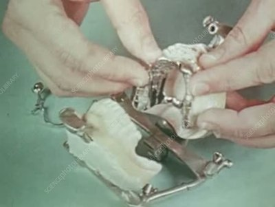 Constructing and fitting dentures, 1960s