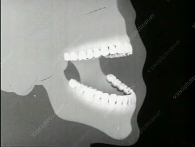 Dental health film, periodontitis