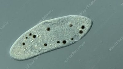 Paramecium fed on Indian Ink