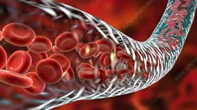 Blood flow animation