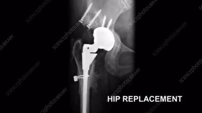 Hip and Knee Replacement, X-Ray