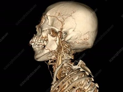 Skull and neck blood vessels, rotating 3D CT angiogram