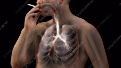 Cancer Risks when Smoking