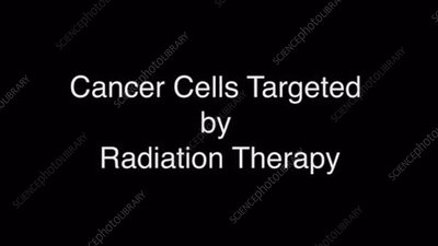 Cancer Cells Targeted by Radiation Therapy