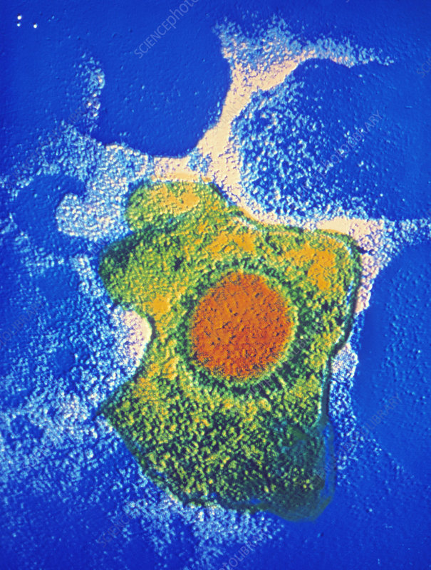 False-colour TEM of a Cytomegalovirus