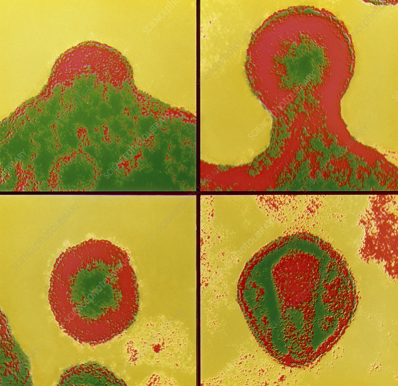 Fal-col TEM sequence of budding Aids virus