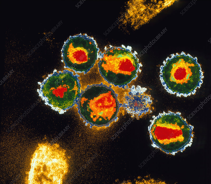 TEM of HIV viruses, cause of AIDS