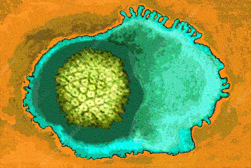 Coloured TEM of a herpes simplex type I virus