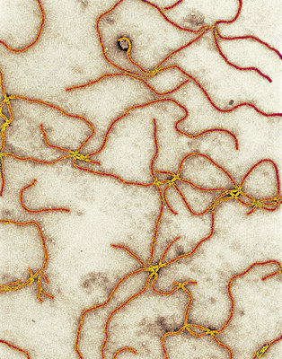 http://www.sciencephoto.com/image/249698/350wm/M0800103-Beet_yellows_virus,_TEM-SPL.jpg