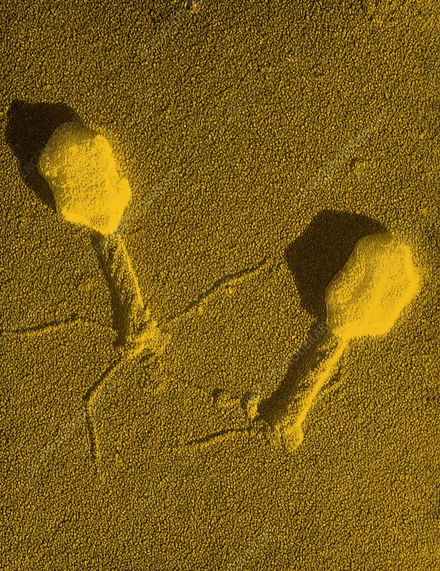 False-col TEM of T4 bacteriophage infecting E.coli