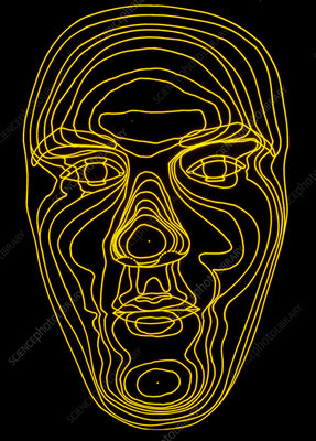 Contour map of face in acromegaly