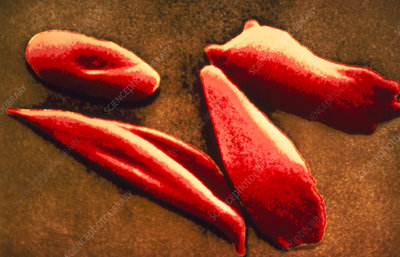 False-col SEM of red cells in sickle cell disease
