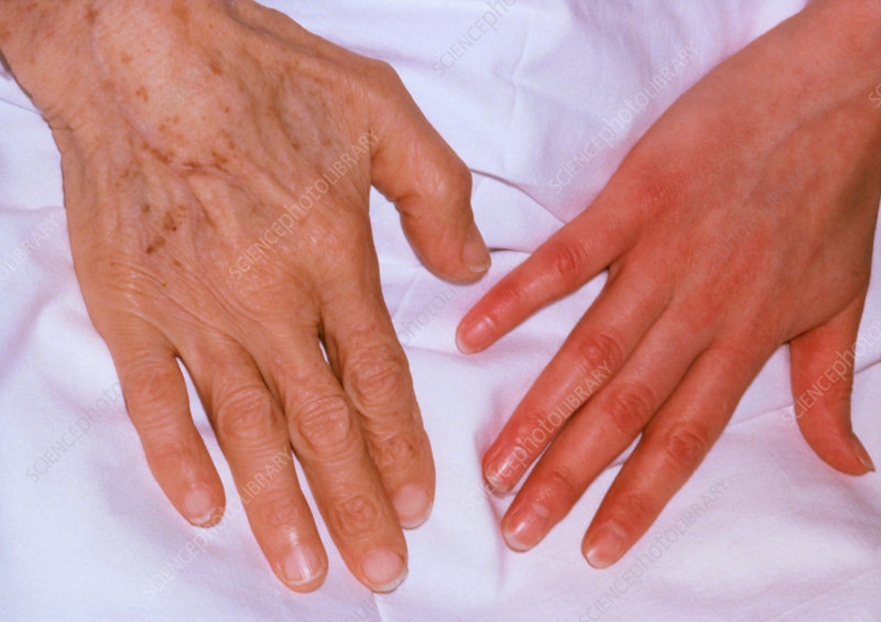 Persons hand with iron deficiency & healthy hand