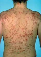 Acne vulgaris: scarring over a man's back