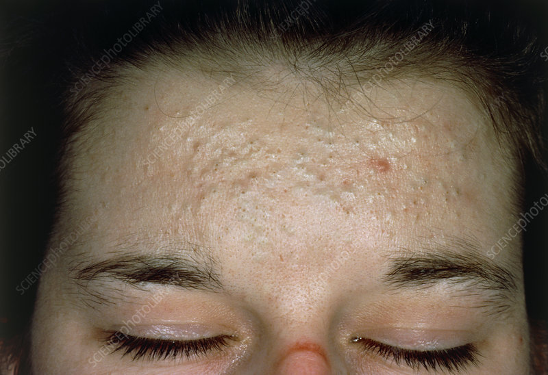 Acne vulgaris: scarring over a woman's forehead