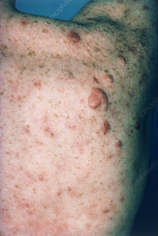 Acne vulgaris: keloid scars on a man's shoulder
