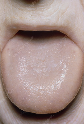 Smooth tongue in pernicious anaemia (Addison's ds)