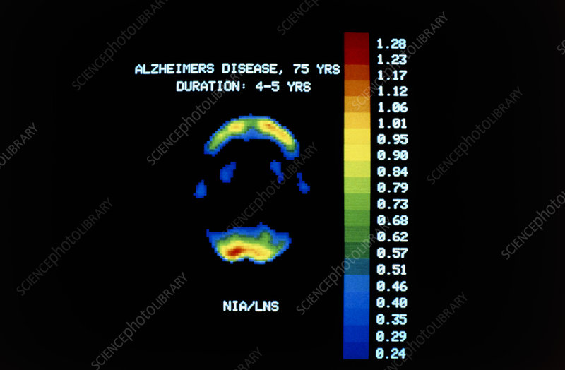 Pet scan of brain in alzheimer s disease