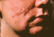 Severe acne scarring over an adolescent boy's face
