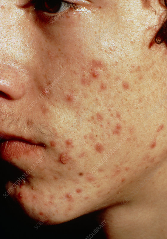 Acne on the face of a young boy