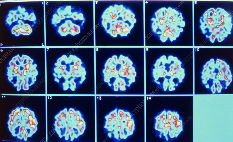PET scan series of Alzheimer's disease
