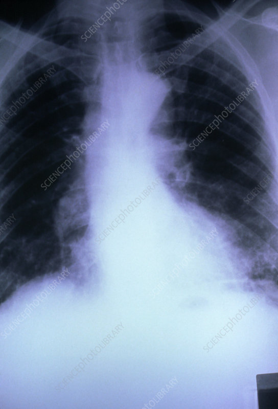 X-ray of lungs affected by fibrosing alveolitis