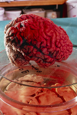 Alzheimer's disease: post-mortem brain in lab.