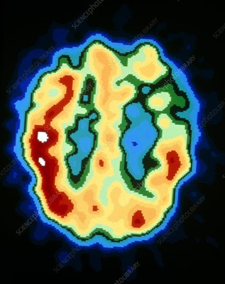 PET brain scan: Alzheimer's disease