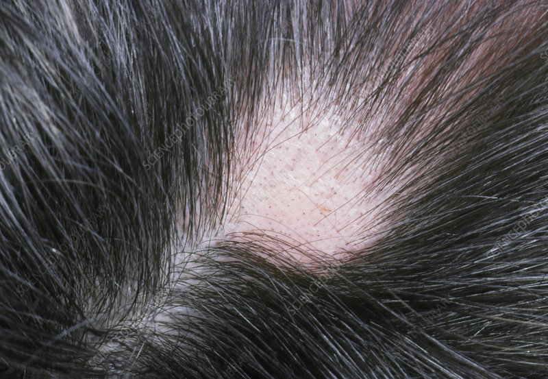 View of a patch of hair loss in alopecia areata