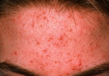 Acne vulgaris on the forehead of a young patient