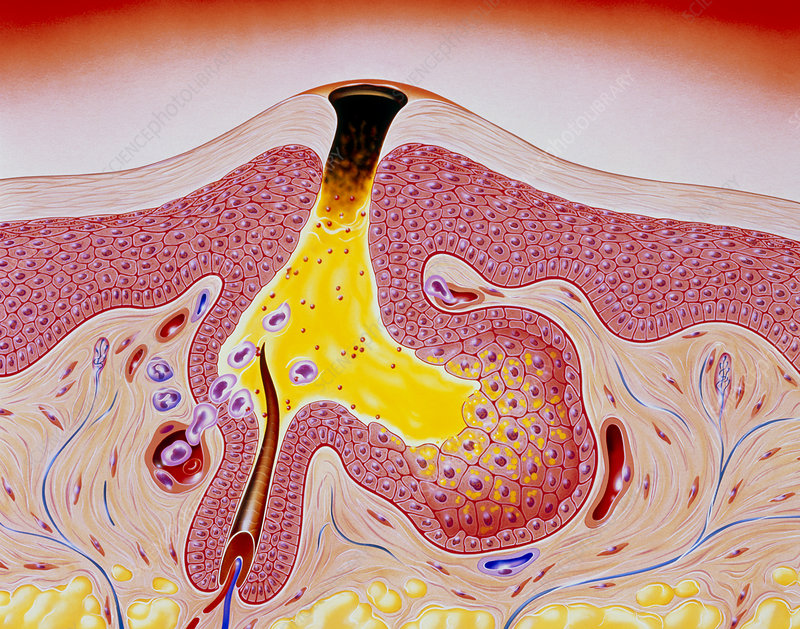 Artwork of acne, showing blackhead development