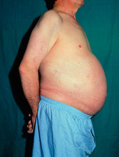 Ascites: side view of distended abdomen