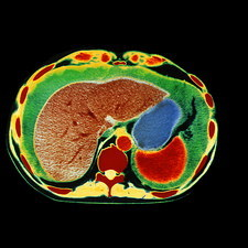 Coloured CT scan showing ascites of the abdomen