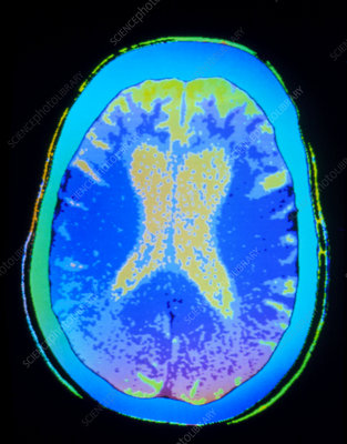 Coloured CT scan of brain with Alzheimer's disease