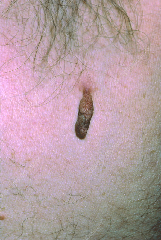 Close-up of a skin tag