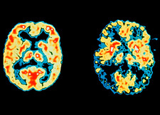 Normal and Alzheimer's disease brains