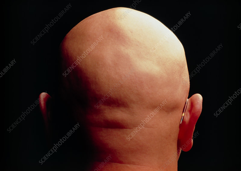 Bald head of a man suffering from alopecia