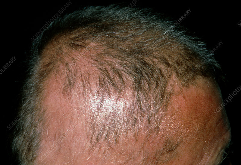 Hair regrowth after alopecia totalis