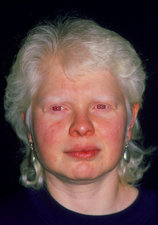 Face of a 37-year-old woman with albinism
