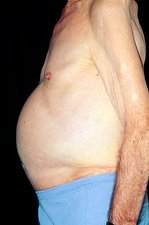 Ascites: side view of a man's distended abdomen