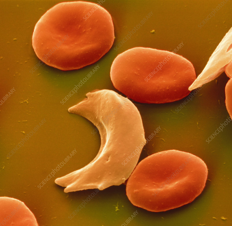 Coloured SEM of blood in sickle cell anaemia
