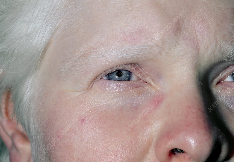 Face of an albino woman