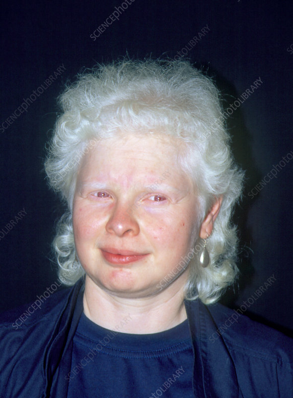 Face of a woman with albinism
