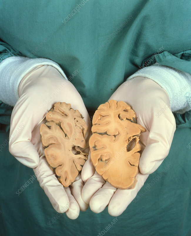 Hands with Alzheimer's brain and healthy one