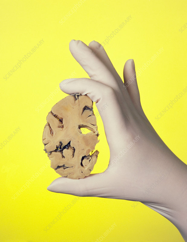 Gloved hand holding brain affected by Alzheimer's