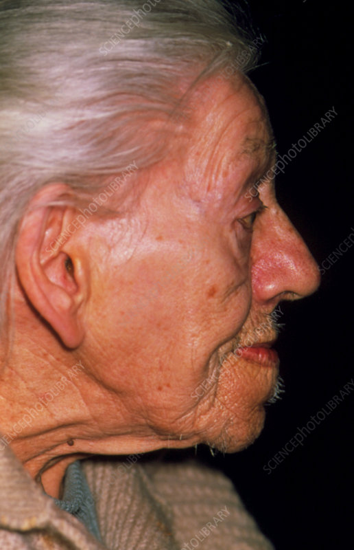 Profile of an elderly woman showing acromegaly